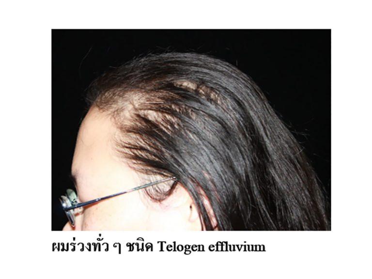 ภาวะผมร่วงฉับพลันชนิดทีโลเจน Telogen Effluvium (TE)