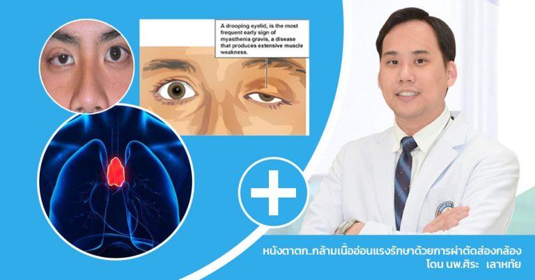 แก้ปัญหาหนังตาตก..กล้ามเนื้ออ่อนแรง รักษาด้วยการผ่าตัดส่องกล้อง